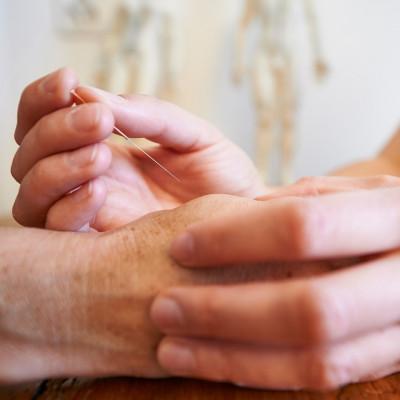 akupunktur-haende
