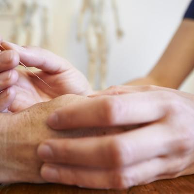 akupunktur-chur